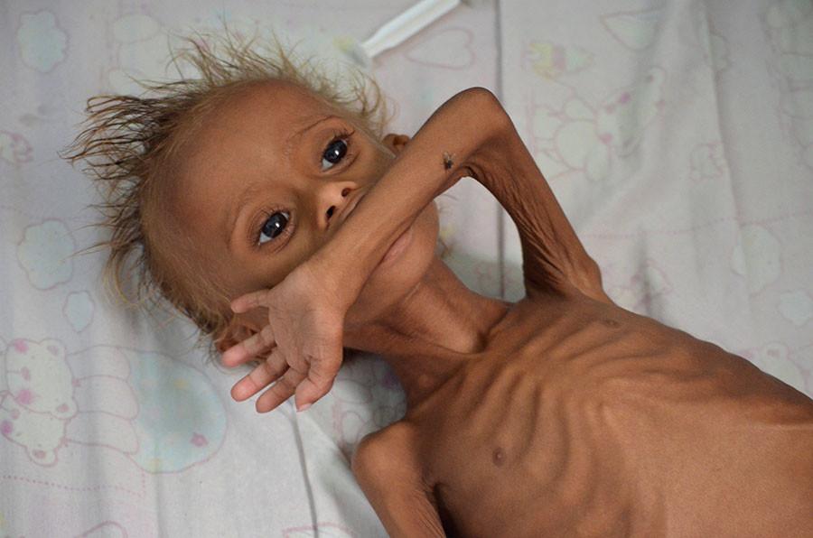 starving-yemeni-child